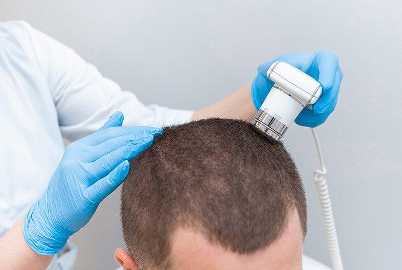 Alopecja – łysienie plackowate